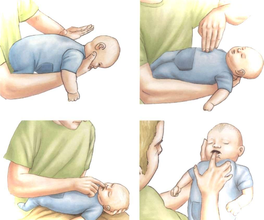 Что делать если трехмесячный ребенок икает