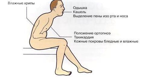 Ortopnoe2