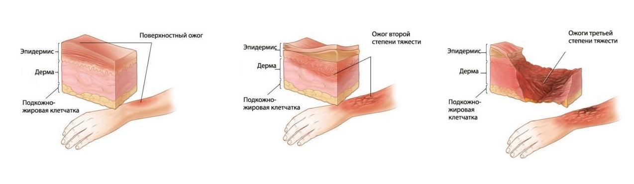 stepen' ozhogov