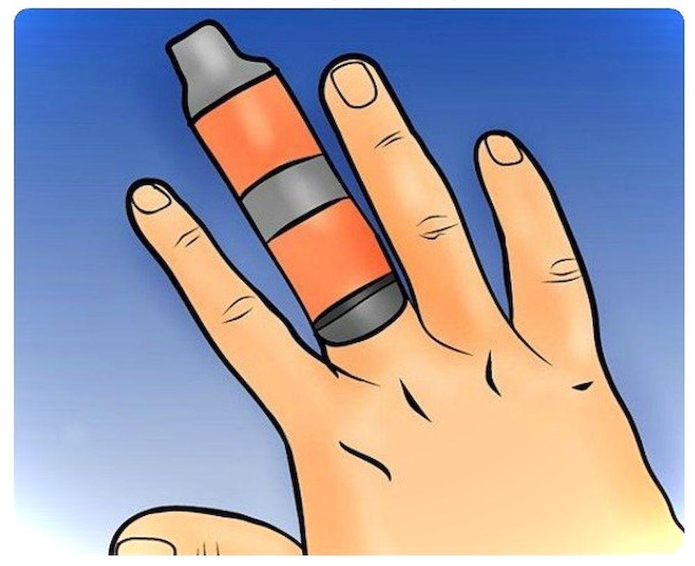 Что делать если сломал палец на руке? Первая помощь при переломе