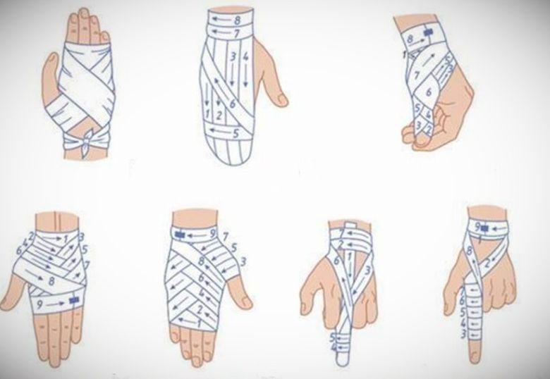 Как перебинтовать палец схема