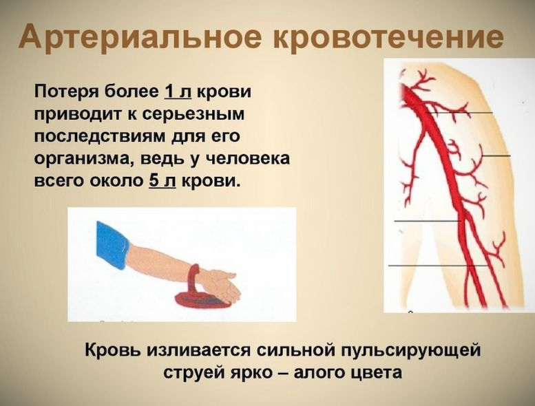 Правила наложения артериального жгута алгоритм